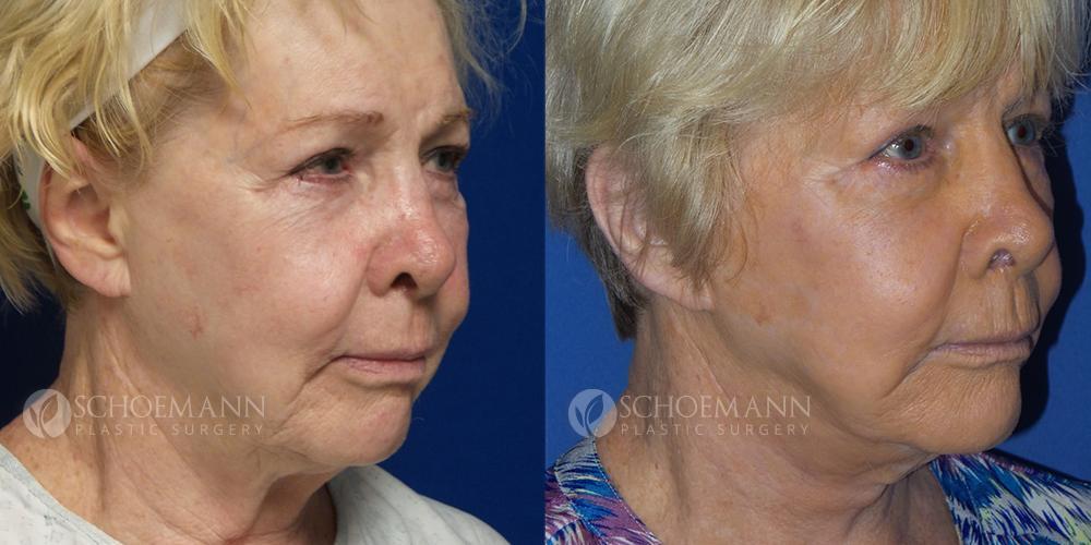 Schoemann-Plastic-Surgery_Encinitas_facelift-patient-1-2