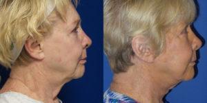 Schoemann-Plastic-Surgery_Encinitas_facelift-patient-1-3