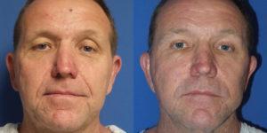 Schoemann-Plastic-Surgery_Encinitas_facelift-patient-2-1