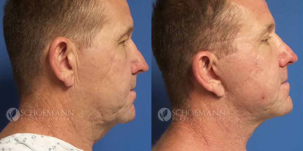 Schoemann-Plastic-Surgery_Encinitas_facelift-patient-2-3