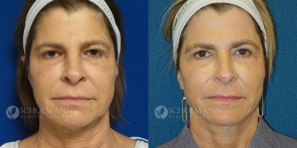 Schoemann-Plastic-Surgery_Encinitas_facelift-patient-3-1