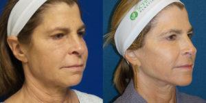 Schoemann-Plastic-Surgery_Encinitas_facelift-patient-3-2