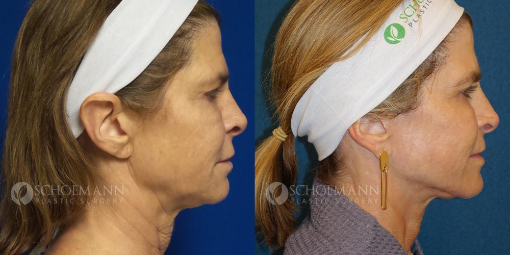 Schoemann-Plastic-Surgery_Encinitas_facelift-patient-3-3