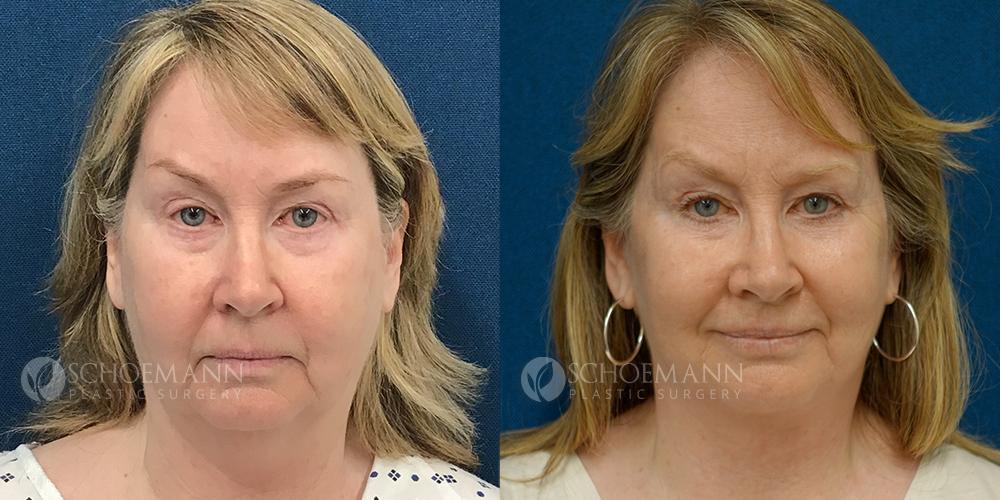 Schoemann-Plastic-Surgery_Encinitas_facelift-patient-4-1