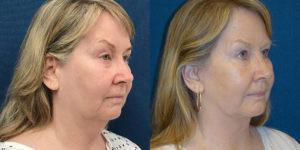 Schoemann-Plastic-Surgery_Encinitas_facelift-patient-4-2