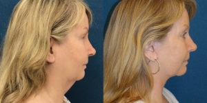 Schoemann-Plastic-Surgery_Encinitas_facelift-patient-4-3