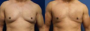 Schoemann-Plastic-Surgery_Encinitas_gynecomastia-patient-1-1