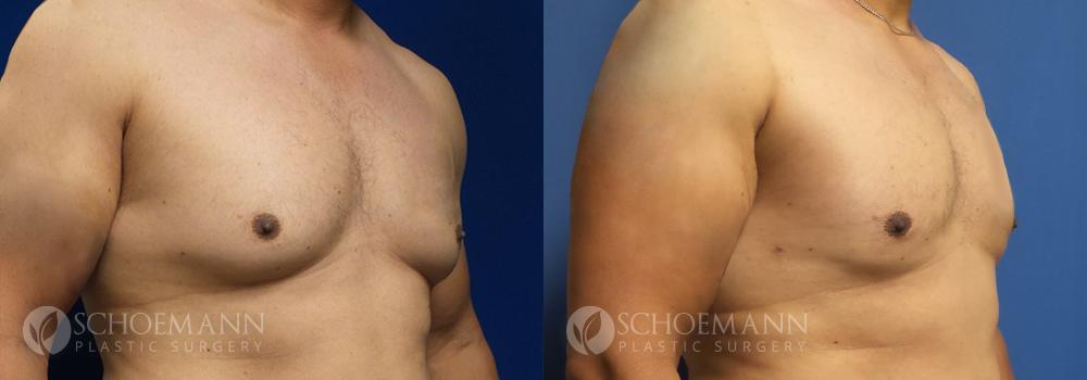 Schoemann-Plastic-Surgery_Encinitas_gynecomastia-patient-1-2