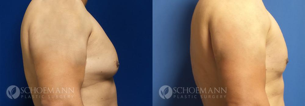 Schoemann-Plastic-Surgery_Encinitas_gynecomastia-patient-1-3