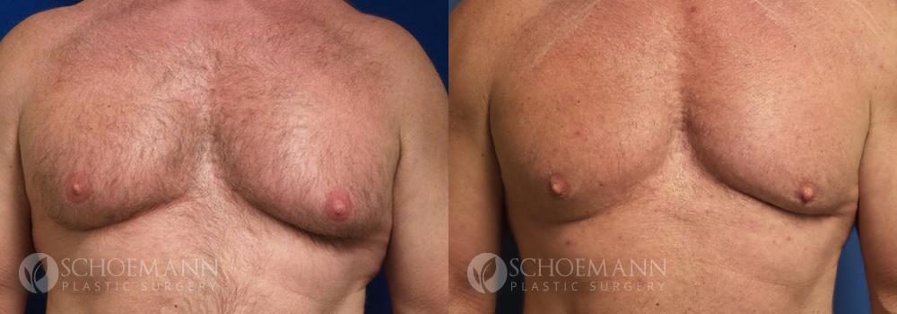 Schoemann-Plastic-Surgery_Encinitas_gynecomastia-patient-2-1