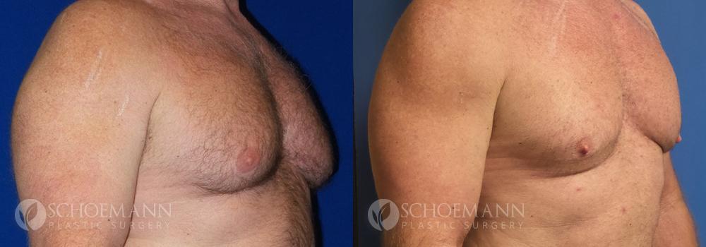 Schoemann-Plastic-Surgery_Encinitas_gynecomastia-patient-2-2