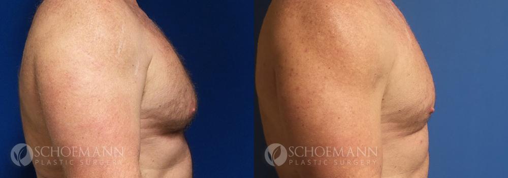 Schoemann-Plastic-Surgery_Encinitas_gynecomastia-patient-2-3