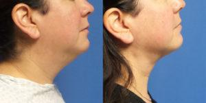 Schoemann-Plastic-Surgery_Encinitas_liposuction-patient-1-1