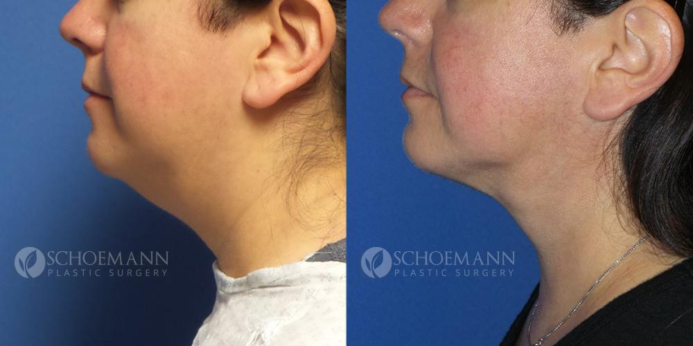 Schoemann-Plastic-Surgery_Encinitas_liposuction-patient-1-2