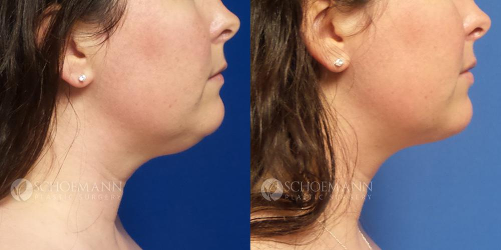 Schoemann-Plastic-Surgery_Encinitas_liposuction-patient-2-1