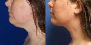 Schoemann-Plastic-Surgery_Encinitas_liposuction-patient-2-2