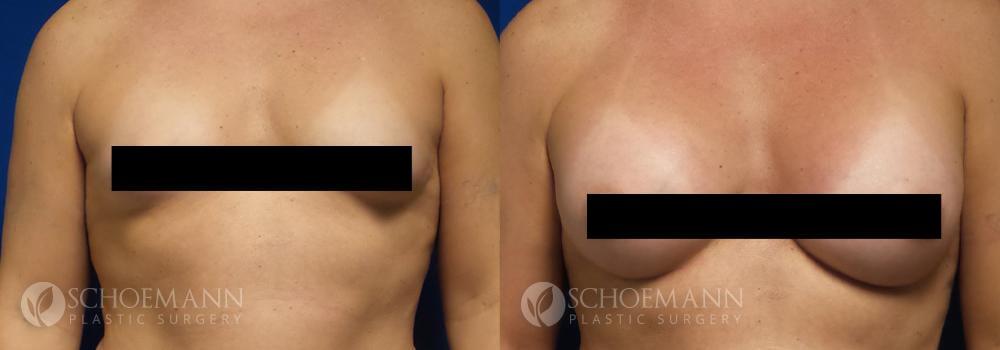 Schoemann-Plastic-Surgery_Encinitas_maletofemalebreastsurgery_censored2_0000_1