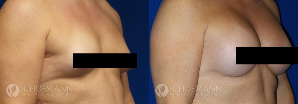 Schoemann-Plastic-Surgery_Encinitas_maletofemalebreastsurgery_censored2_0001_2