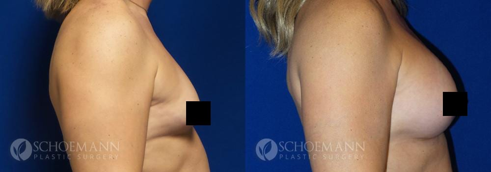 Schoemann-Plastic-Surgery_Encinitas_maletofemalebreastsurgery_censored2_0002_3