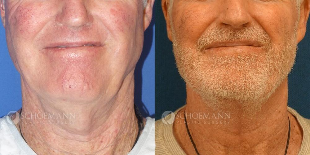 Schoemann-Plastic-Surgery_Encinitas_neck-lift-patient-1-1