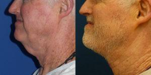 Schoemann-Plastic-Surgery_Encinitas_neck-lift-patient-1-2