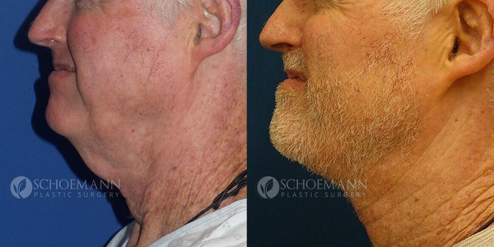 Schoemann-Plastic-Surgery_Encinitas_neck-lift-patient-1-2