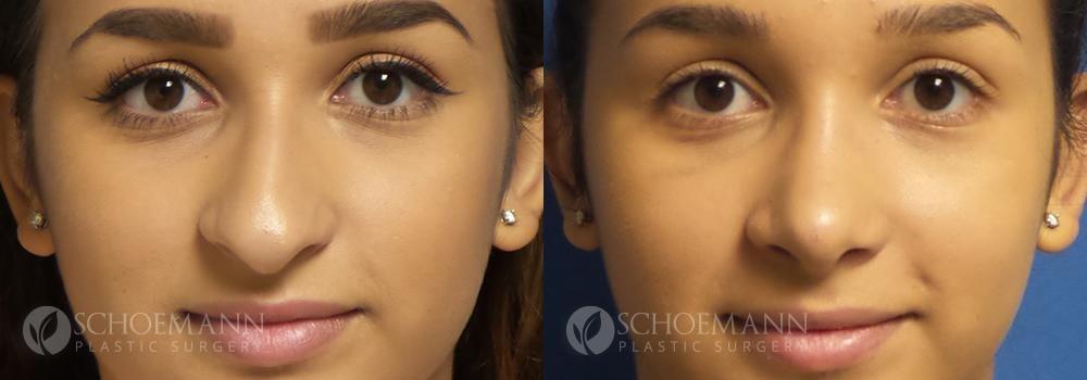 Schoemann-Plastic-Surgery_Encinitas_rhinoplasty-patient-1-1