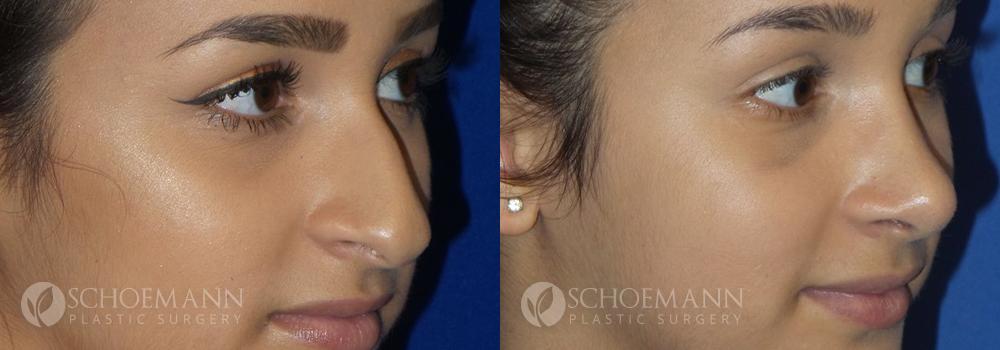 Schoemann-Plastic-Surgery_Encinitas_rhinoplasty-patient-1-2