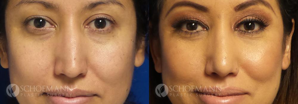 Schoemann-Plastic-Surgery_Encinitas_rhinoplasty-patient-2-1
