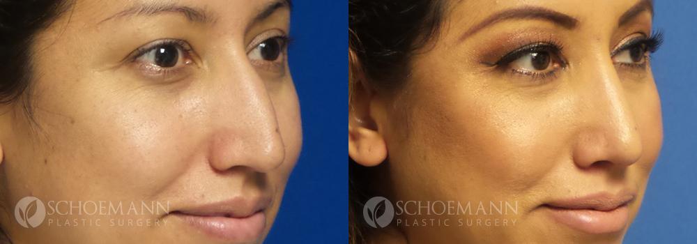 Schoemann-Plastic-Surgery_Encinitas_rhinoplasty-patient-2-2