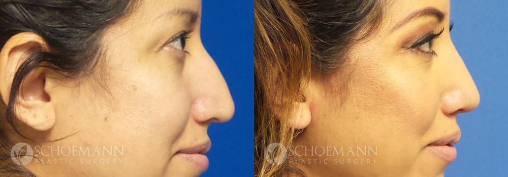 Schoemann-Plastic-Surgery_Encinitas_rhinoplasty-patient-2-3
