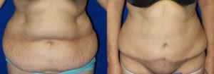 Schoemann-Plastic-Surgery_Encinitas_tummy-tuck-patient-1-1