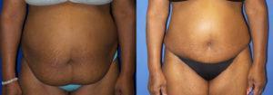 Schoemann-Plastic-Surgery_Encinitas_tummy-tuck-patient-2-1