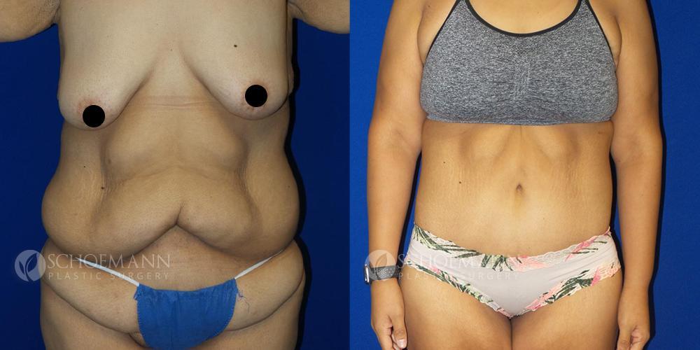 schoemann-plastic-surgery-encinitas-body-lift-patient-1-1-censored