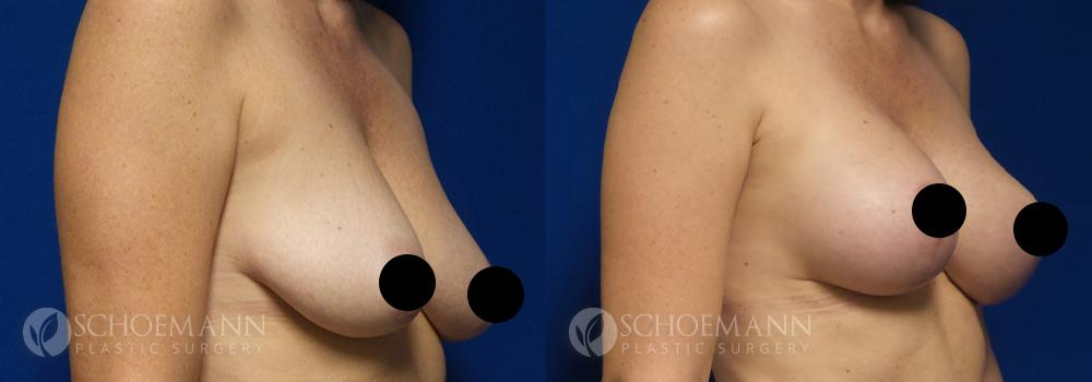 schoemann-plastic-surgery-encinitas-breast-augmentation-breast-lift-patient-2-2-censored