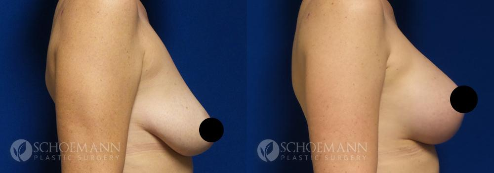 schoemann-plastic-surgery-encinitas-breast-augmentation-breast-lift-patient-2-3-censored