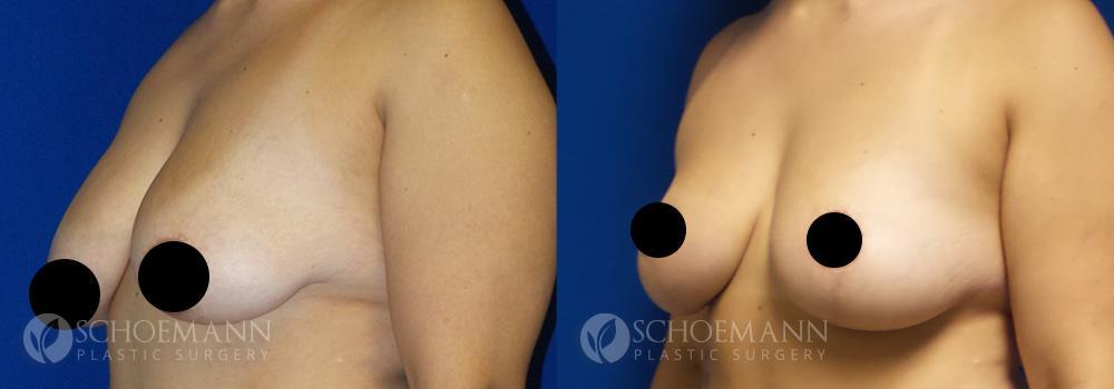 schoemann-plastic-surgery-encinitas-breast-augmentation-breast-lift-patient-4-2-censored