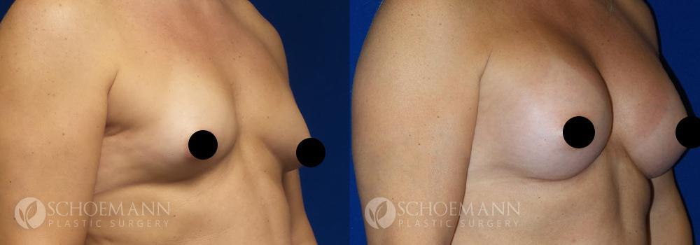 schoemann-plastic-surgery-encinitas-breast-augmentation-patient-9-2-censored